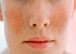 Pigmentation and Unwanted Hair