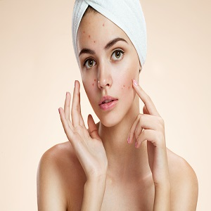 Best Unwanted Hair and Acne